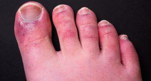Covid toe (Chris Curry)